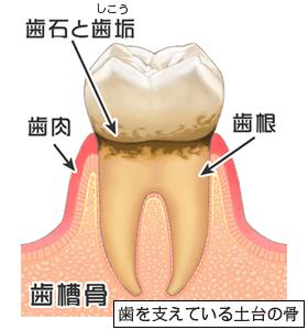 症状:自覚症状なし、歯ぐきの腫れ、むくみ、赤み、口臭・・・など