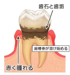 症状:自覚症状なし、歯ぐきの腫れ、むくみ、赤み、口臭、しみる、ネバネバする、歯磨き時の出血・・・など
