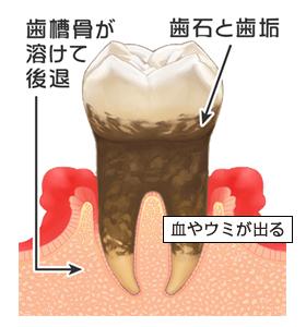 症状:自覚症状なし、歯ぐきの腫れ、むくみ、赤み、口臭、しみる、ネバネバする、出血、ウミが出る、歯が揺れる・・・など