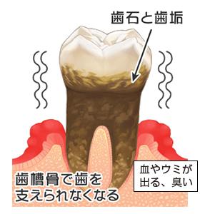 症状:歯ぐきの腫れ、赤み、出血、口臭、しみる、ネバネバする、ウミが出る、歯がグラグラする、歯が抜ける・・・など