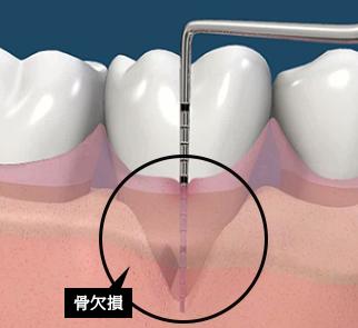 検査をし、歯肉の下の骨が溶けている部分を測定致します。再生医療の適応かレントゲン、CT検査等で検討します。