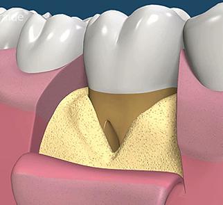 歯肉を切って、欠損部分を露出させ、歯石やバイ菌をきれいにお掃除致します。