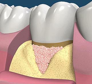人工の補填材(骨の再生を促す材料)を欠損部位におきます。
