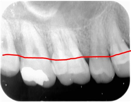 今まで回復できなかった、歯を支える骨を再生する治療法です。