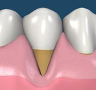 歯肉が退縮しています。この状態では見た目もよくなく、歯周病や虫歯になりやすいです。