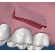 上あごから歯肉を切り、退縮部分にいれます。