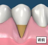 移植した歯肉は完全になじんで退縮部はなくなりました。