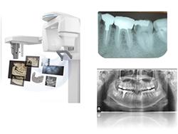 CT撮影も可能な最新高画質デジタルレントゲン 開業医で撮影するレントゲン全て揃ってます