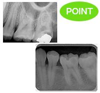 二次虫歯、コンタクト虫歯はレントゲンの撮影で発見できる可能性があります