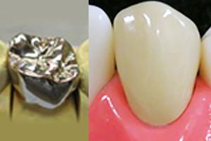 奥歯:メタルクラウン 前歯:硬質レジン前装冠
