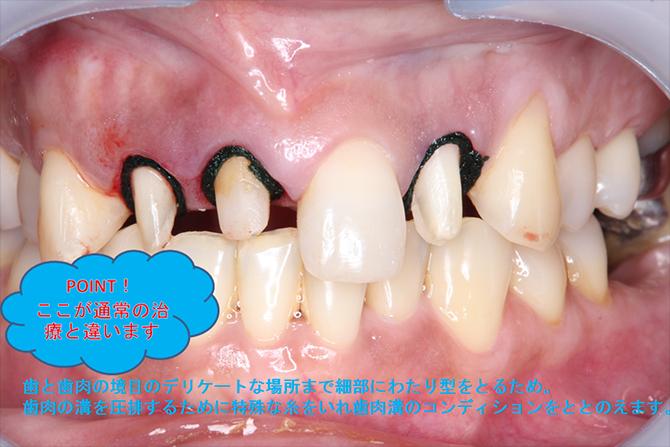 歯茎の状態を整え、型が細部までとれるように調整します。