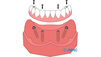 上顎洞底面の粘膜(シュナイダー膜)を持ち上げてインプラントを埋入する手術方法