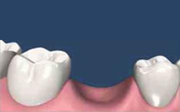残念ながら歯がない状態です。これからインプラント治療を行います。