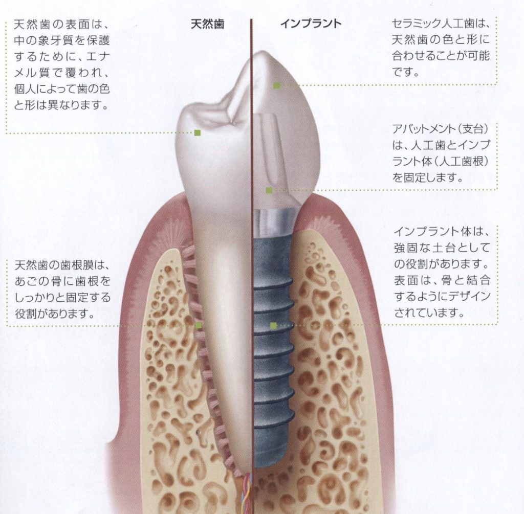 87インプラントと天然歯