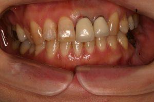 術前前歯2本が差し歯ですが、色があってません。