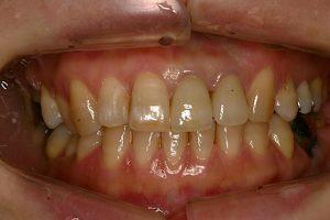 術後 前歯2本をオーダーメイドセラミックに変更しました。