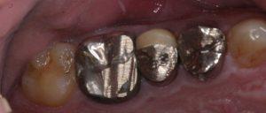 術前 奥歯は錆びて削れた銀歯でした。