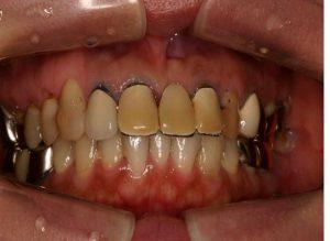 術前 上の前歯のプラスチックが変色してます。オールセラミックに取り替えます。
