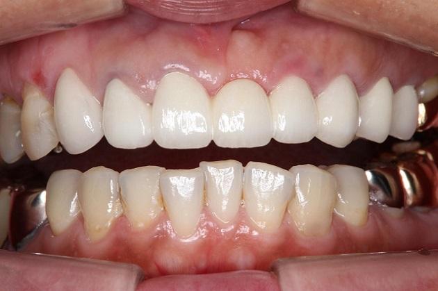 術後 オーダーメイドオールセラミックで変更しました。白く歯が輝いています。