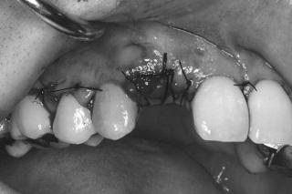 症例1 手術